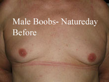 before-male-boobs