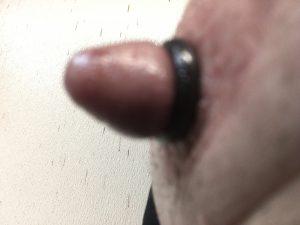 Nipple Enlargement