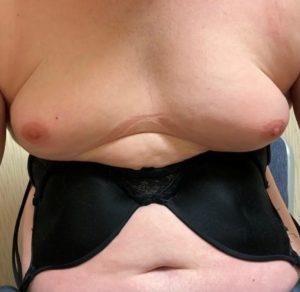 Breast Enlargement Oil